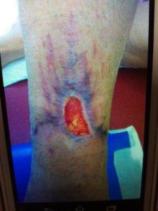 Slika 3 u toku terapije