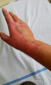 Slika 3- u toku terapije