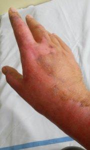 Slika 5- u toku terapije