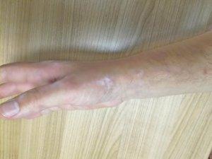 Slika 7- Nakon terapije