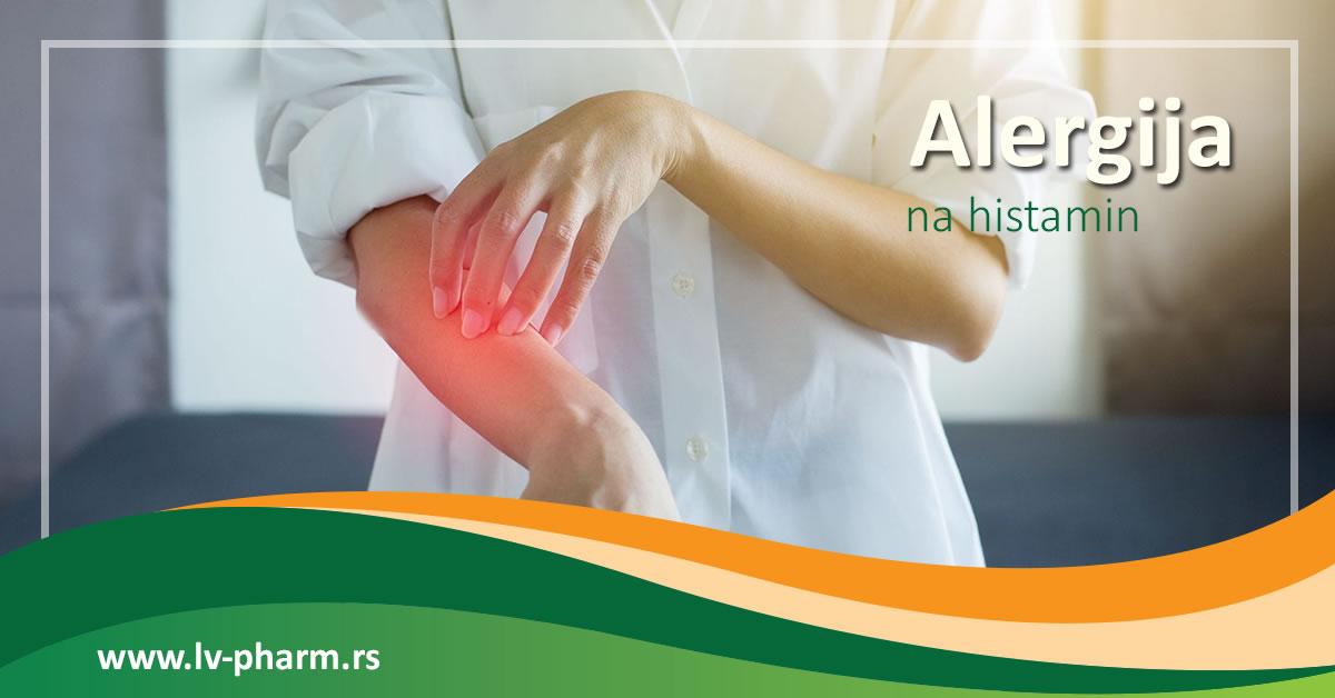 Alergija na histamin